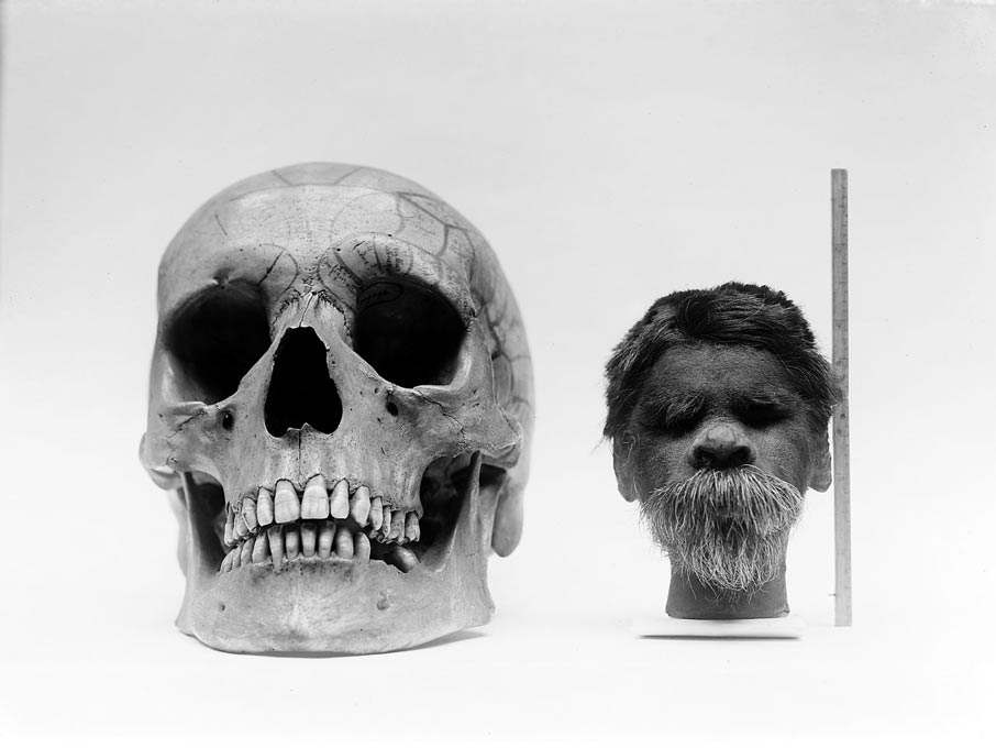 Shrunken head compared with normal human skull.